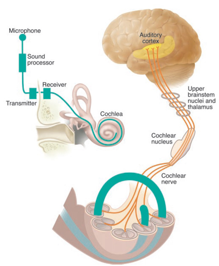 Penetrating auditory brainstem implants that bypass the auditory nerve